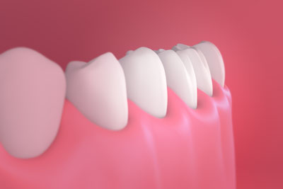 Tips For Preventing Gum Disease From American Dental Group